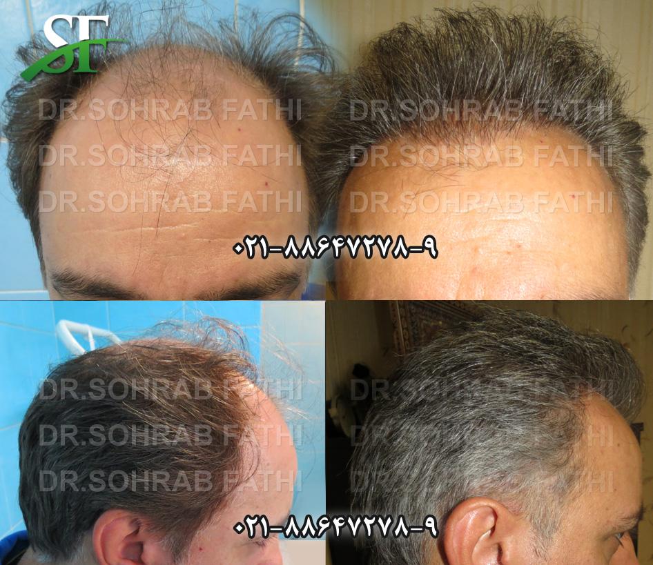 tehranhairart-hair01