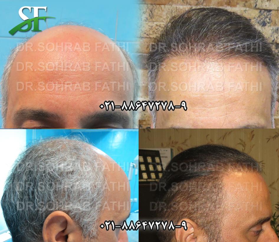 tehranhairart-hair05