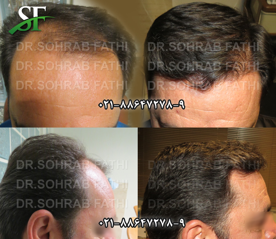 tehranhairart-hair10