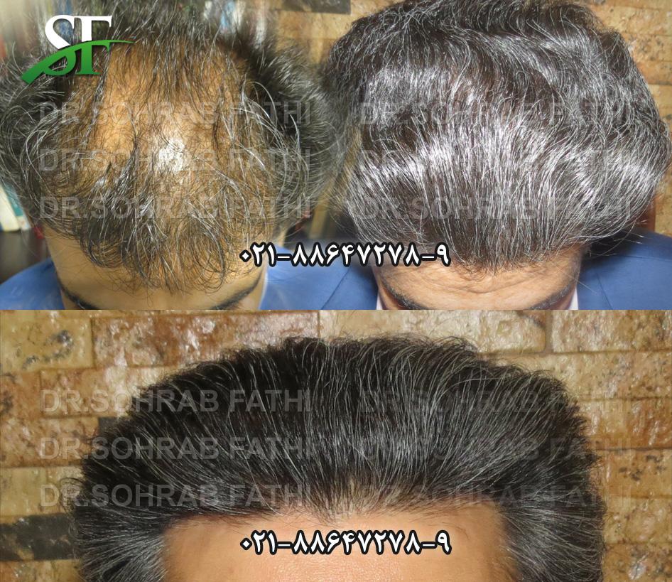 tehranhairart-hair11