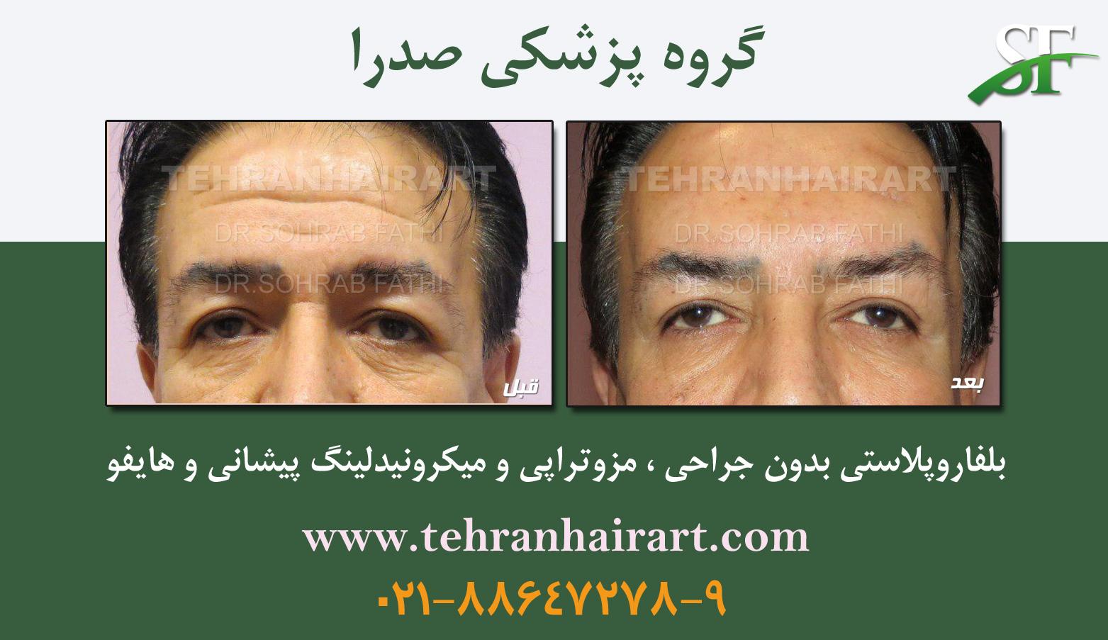 tarkibi-TEHRANHAIR
